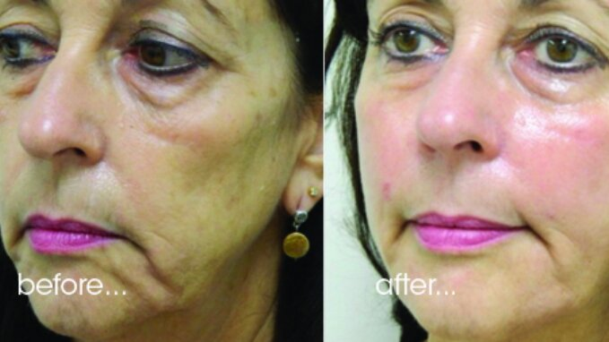 Técnica para deixar a sua pele mais bonita - Clube das Comadres